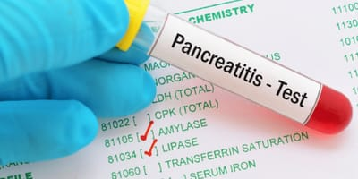How to treat pancreatitis in cats?