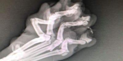 Die Röntgenaufnahme weist auf Schreckliches hin