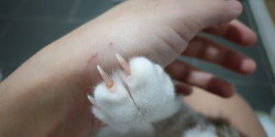 Katzenkratzkrankheit – wie gefährlich ist sie für Menschen?